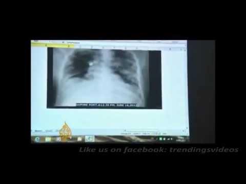 What is mers cov / mers-cov / merscov / sars / corona virus / mers ? watch video for explanation