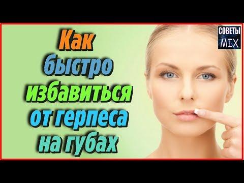 Как быстро избавиться от герпеса на губах в домашних условиях Полезные советы