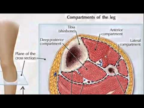 What is Compartment Syndrome? - TheNurseNinja