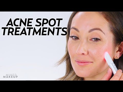 5 Acne Spot Treatments That Work Fast! | Beauty with Susan Yara