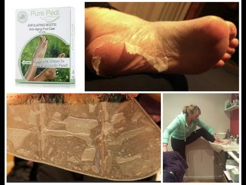 Pure Pedi Foot Peel Review - Salon Secrets