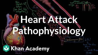 Heart attack (myocardial infarction) pathophysiology | NCLEX-RN | Khan Academy