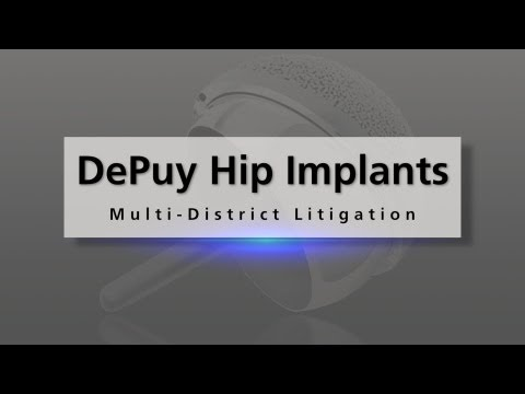 0 Defective Depuy Hip Implant Recall