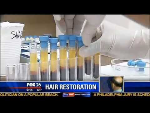 ACell + PRP Stem Cell Hair Regrowth Treatment | Houston Hair Surgeon Dr. Dan McGrath