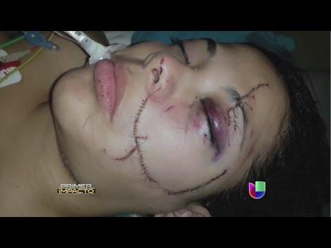 Una modelo fue desfigurada en Ecuador - Primer Impacto