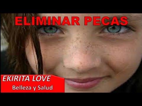 ELIMINAR PECAS CON PRODUCTOS CASEROS Y ASPIRINA - Ekirita Love