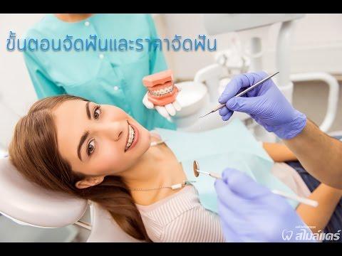 ขั้นตอนการจัดฟัน และราคาจัดฟัน