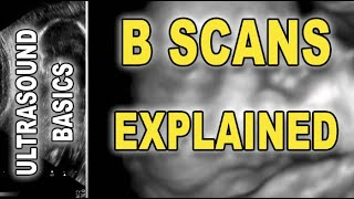 ultrasound - B scan explained