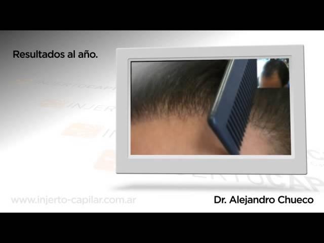 Trasplante capilar de 3000 Uf mediante técnica FUE. Dr Alejandro Chueco