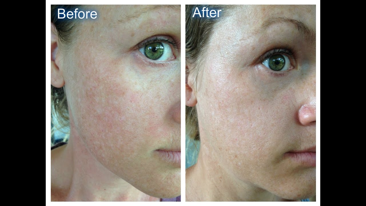 Watch How to Stop Your Face from Peeling video