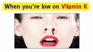 Vitamin K : Top 10 Signs and Symptoms of Vitamin K Deficiency