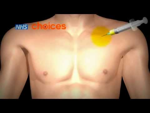 Pacemaker implantation animation