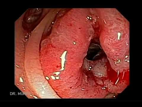 Colonoscopia Caso De Cancer Del Colon Descendente Youtube