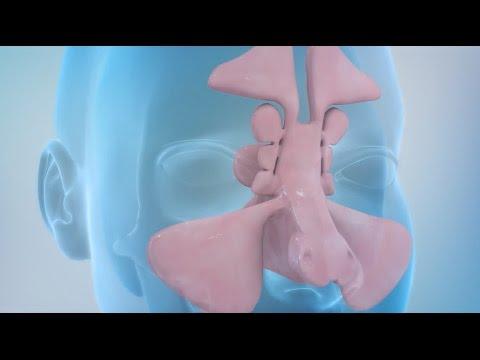 Sinusitis and Sinus Surgery Explained (Balloon Sinuplasty and Endoscopic Sinus Surgery)