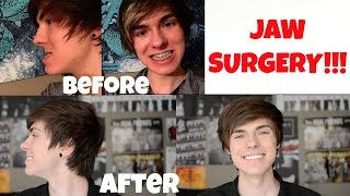 Orthognathic Jaw Surgery Experience and Recovery!