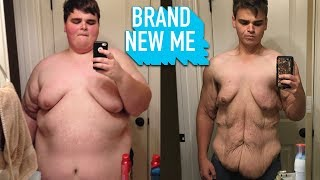 I Lost 230lbs And I'm Proud Of My Saggy Skin | BRAND NEW ME