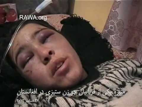 Maniza, Afghan woman victim of violence