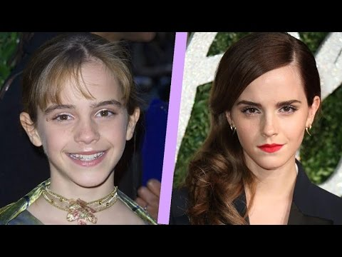 16 Celebs Who Grew Into Beautiful Swans