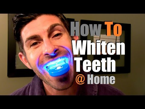 How To Whiten Teeth At Home   Teeth Whitening Options