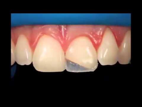 Diş kırığı tedavisi www.bayanlarbilir.com
