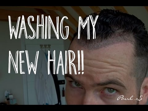 WHEN CAN YOU WASH YOUR HAIR AFTER A HAIR TRANSPLANT? MY VLOG AFTER 5 DAYS AD