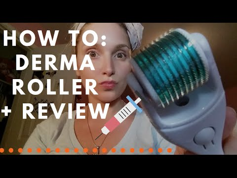 How To: Dermroller (for ACNE scars!)   LadyLuckTutorials