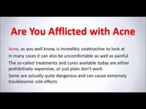 Dr. Oz Shows you makeup for acne with best acne treatment.