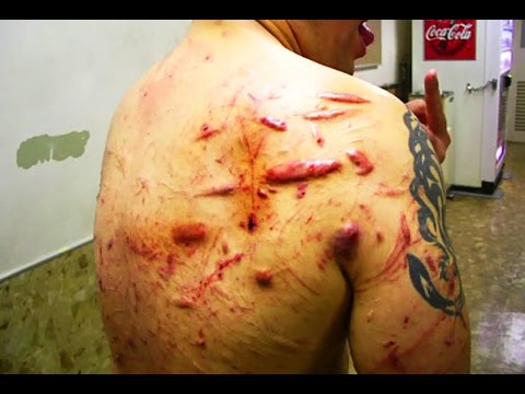 Jun Kasai's Scarred Back; Is This a Disgrace to Pro Wrestling?