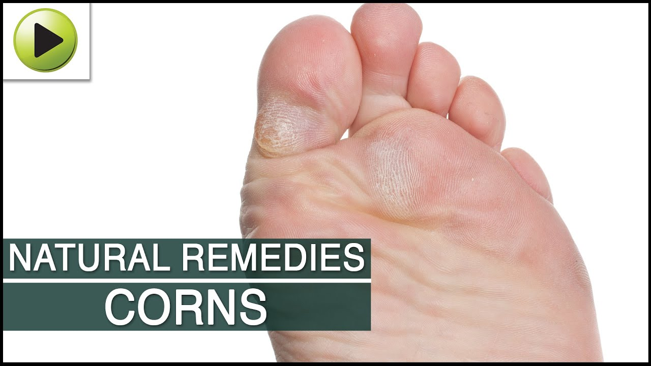 Home Remedy For Corn On Foot Finger