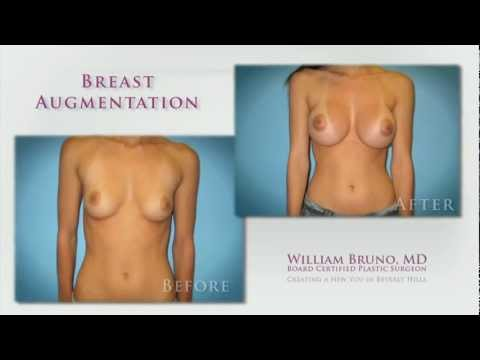 Very good breast implants apologise, but