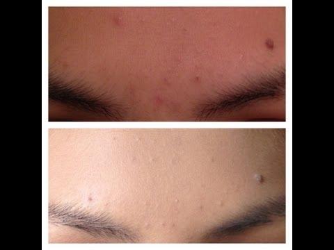 Desmancha tu cara con Agua Oxigenada|Remove dark spots on your face with hydrogen peroxide