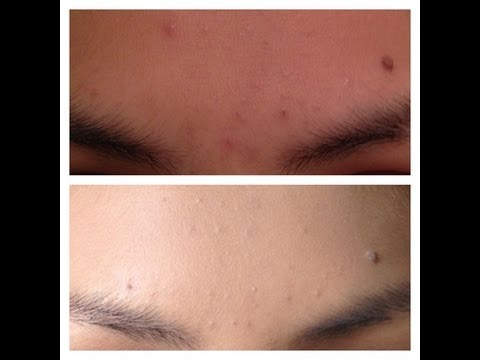 Desmancha tu cara con Agua Oxigenada|Remove dark spots on your face with hydrogen peroxide