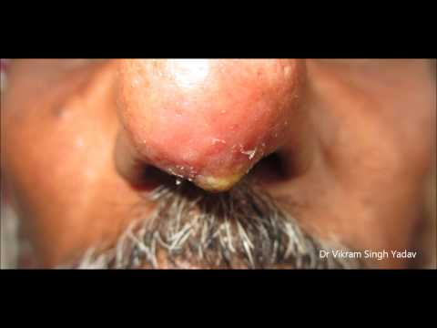 Boil On Nose Tip