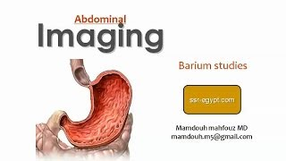 Imaging of Gastric lesions (Dec 2013) - Dr Mamdouh Mahfouz (In Arabic)