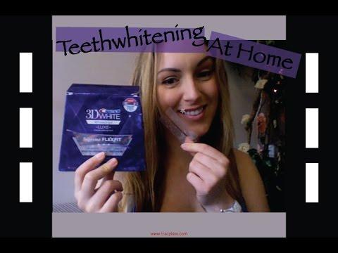 Teeth Whiteners Crest Crest Home Teeth Whitening