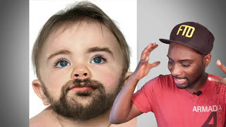 Download Song 1 Yr Old Baby Has Huge Body Parts & Facial Hair - Rare Condition Free StafaMp3