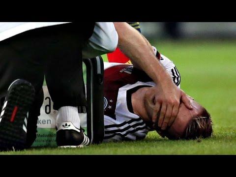 Marco Reus Injury  Germany vs Scotland