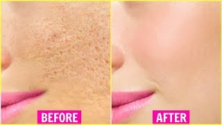 Try THIS for 7 Days & Get Rid Of Large Open Pores Permanently | Anaysa