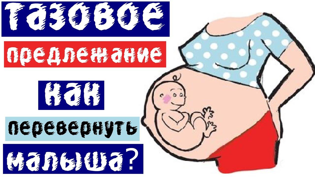 Гимнастика для беременных с тазовым предлежанием плода