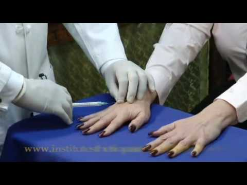 Los Angeles Hand Rejuvenation - Get Youthful Looking Hands on your Lunch Break