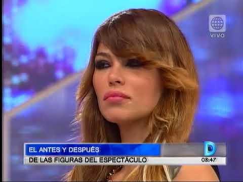 Antes y despues de Michael Soifer, Natalie Vertiz, Tilsa Lozano, Milett Figueroa