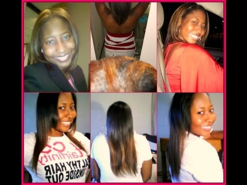 HairFinity 1 Year Progress  Update #3