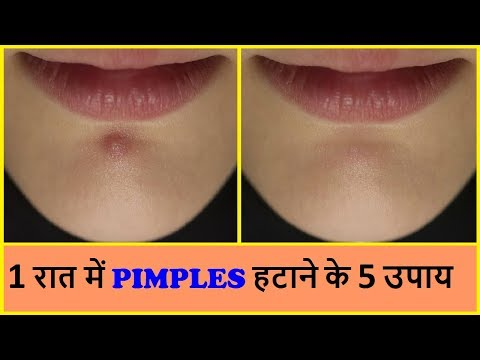 पिम्पल हटाने के 5 उपाय | HOW TO REMOVE PIMPLES OVERNIGHT | Home remedies for Pimples / Acne