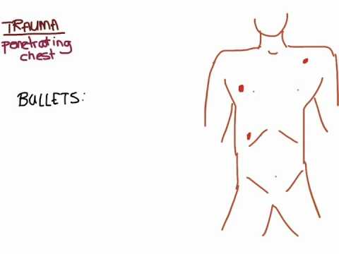 Trauma 04: Penetrating Chest Trauma