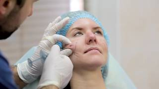 Full Face Correction with Juvederm Volumizing Filler featuring Dr. Bendlin