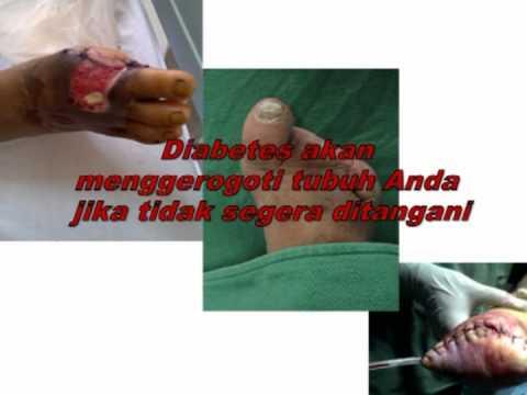 Obat Herbal Diabetes Kering
