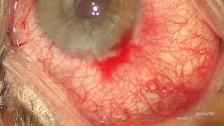 IOL (Göz içi lens) çıkartılması