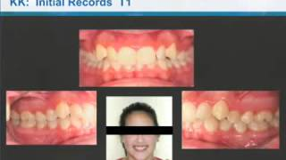 Class II Correction with Invisalign and the Carriere Distalizer - Dr. Clark Colville