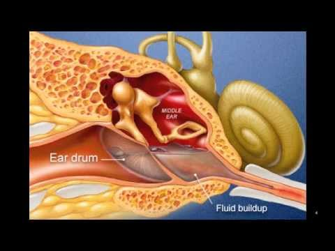 Ear Infection Youtube