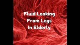 fluid leaking from legs in elderly